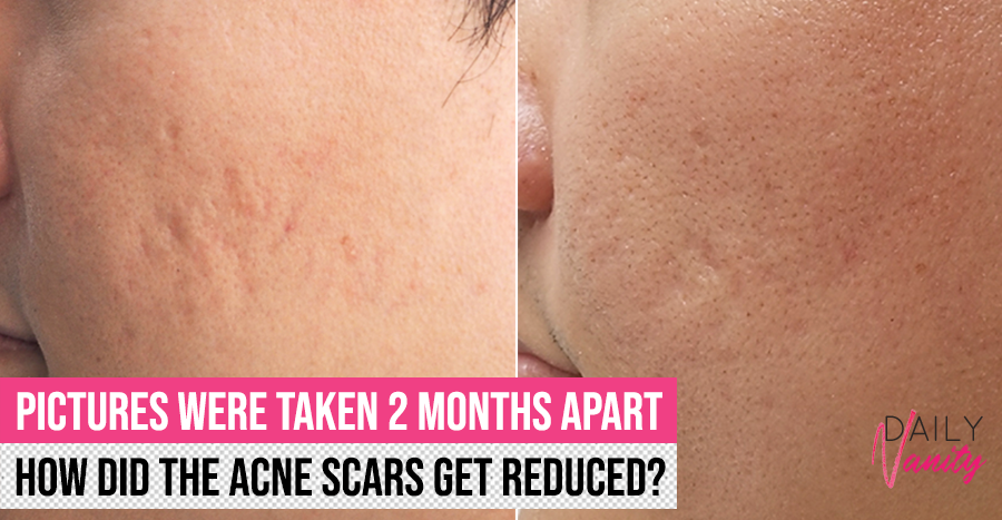 Acne scar removal in Singapore: The Clifford Aesthetics tell us what it takes to achieve smoother skin
