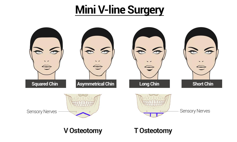 Mini V Line