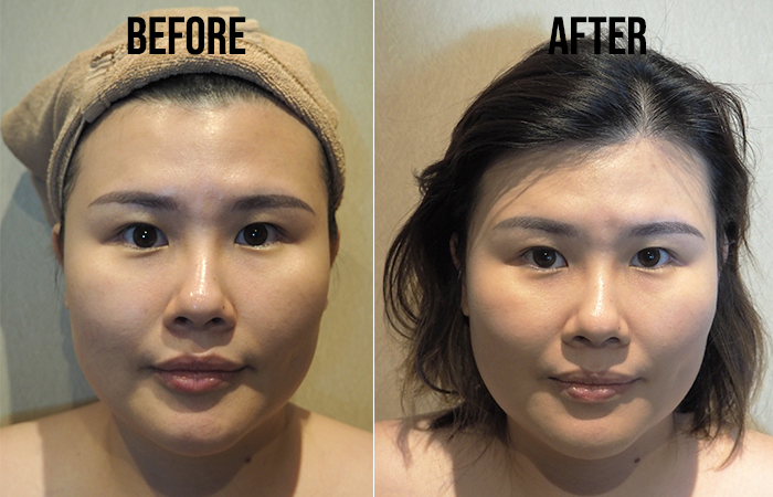 Skin Repair Sonolift Treatment Review Before After