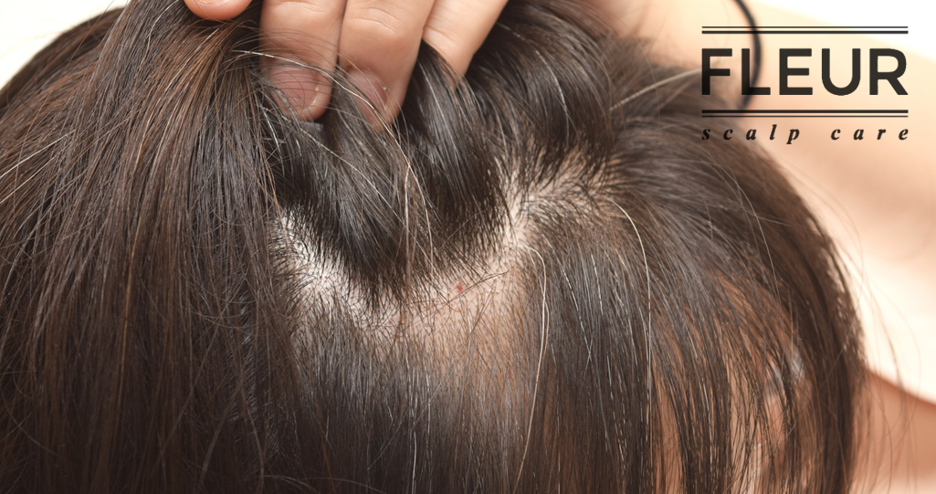 Best Scalp Treatment Singapore Fleur Scalp Care