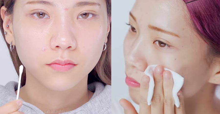 How to cure acne: all the basic tips you need to know in 2021