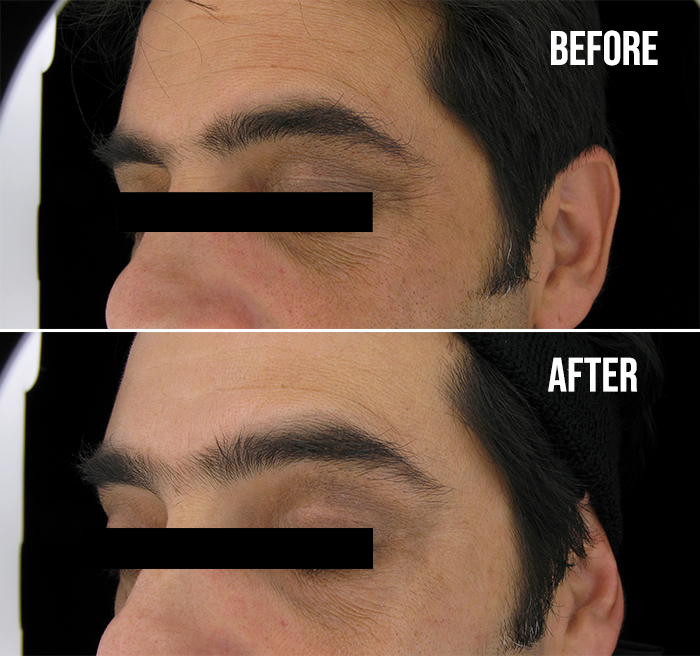 Skinceuticals Ce Ferulic Before After2 1