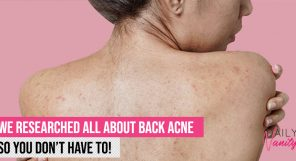 Back Acne Featured