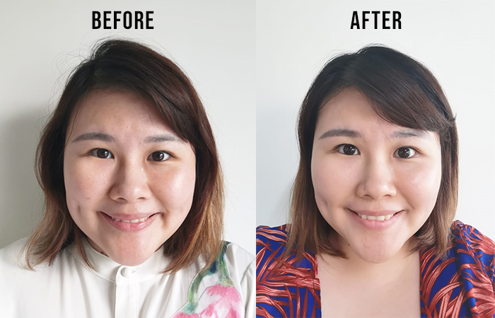 Dr Ora Sun Supplement Before After