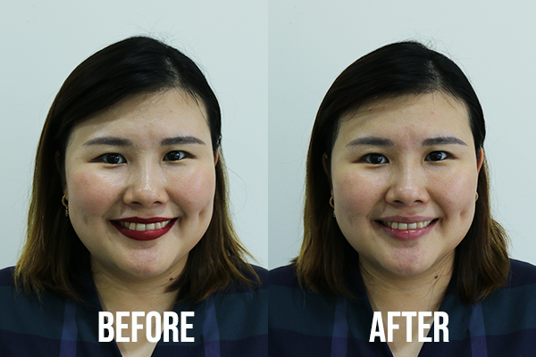 Bioderma Micellar Water Review Before After 2