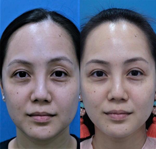 Freia Neogen Plasma Face Eye Lift Before After1