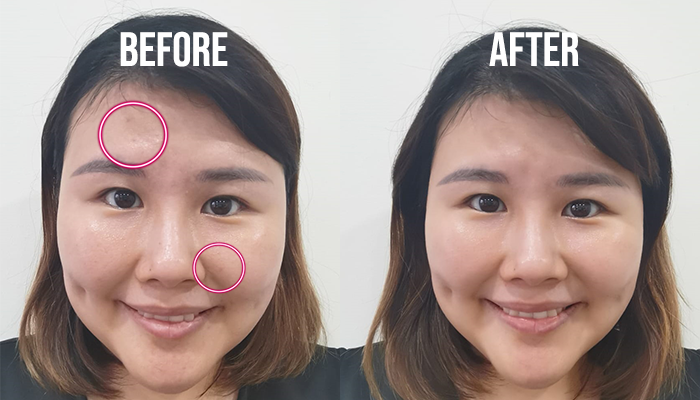 Lancome Clarifique Review Overall Before And After2