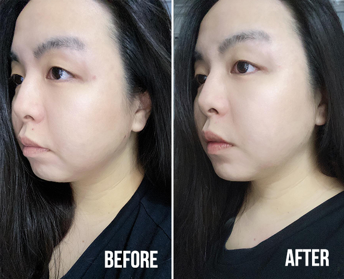 Kiehls Clearly Corrective Dark Spot Solution Jeanie Before After