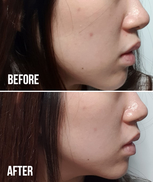 Kiehls Clearly Corrective Dark Spot Solution Xin Yi Before And After