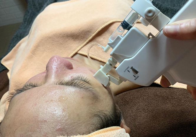 Best Facial Extraction Skin Paradise Vt Treatment