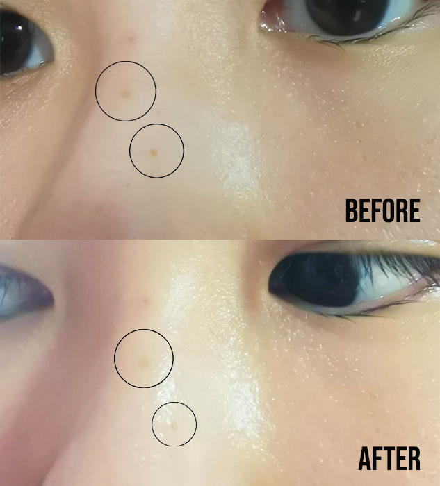 Kiehls Clearly Corrective Dark Spot Solution Review Before After1