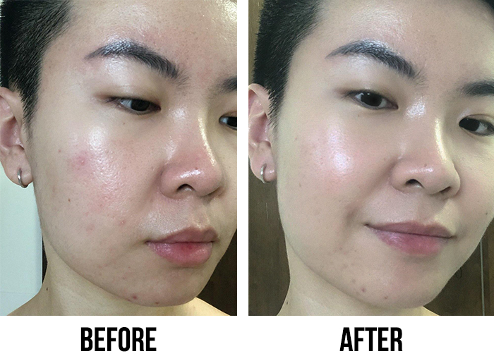 Suisai Beauty Clear Powder Before After