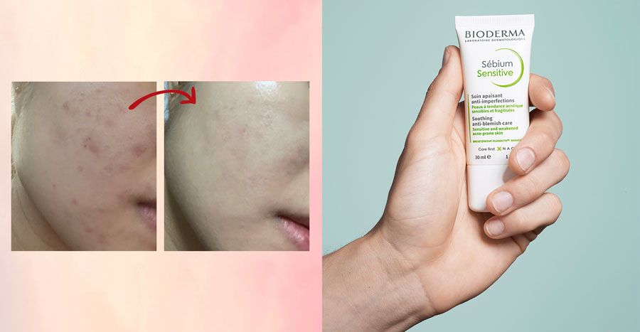 This drugstore moisturiser soothes red skin in just one day, according to 60% of our readers