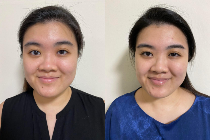 Loreal Paris Crystal Micro-Essence - Before After Results (Lynnett)