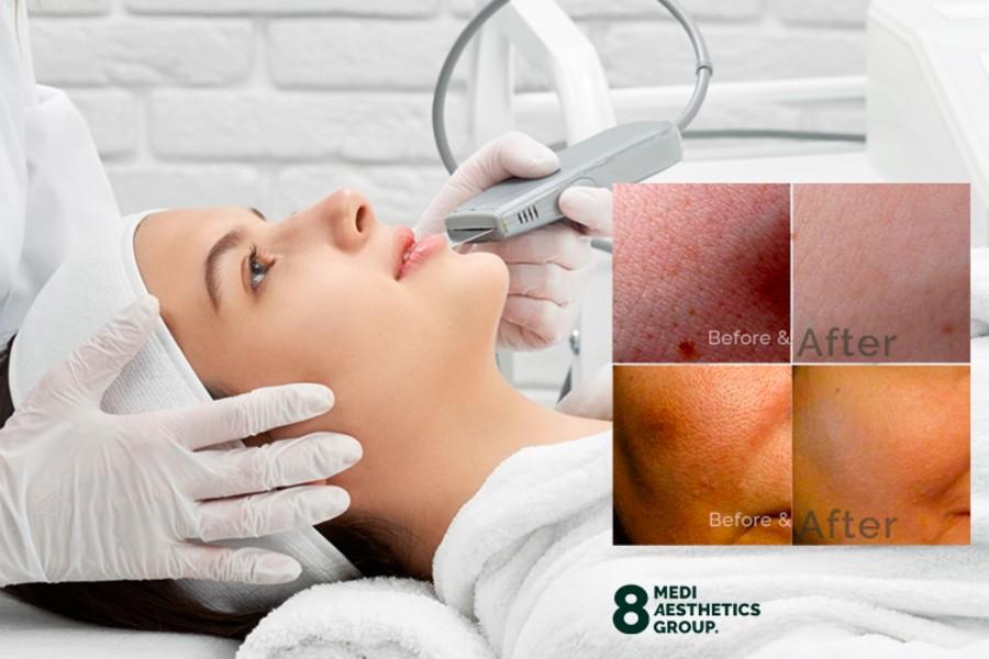 8mediaesthetics No1deepcleansingnanoporefacetherapy