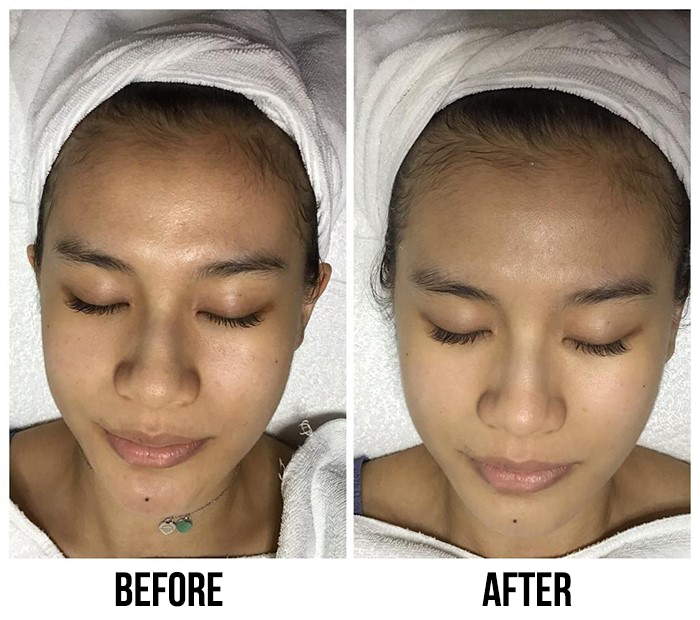 Caring Skin A+ Hydrogen Treatment Before After 1