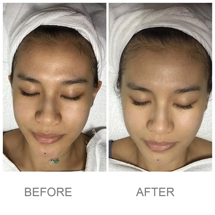 Caring Skin A+ Hydrogen Treatment Before After