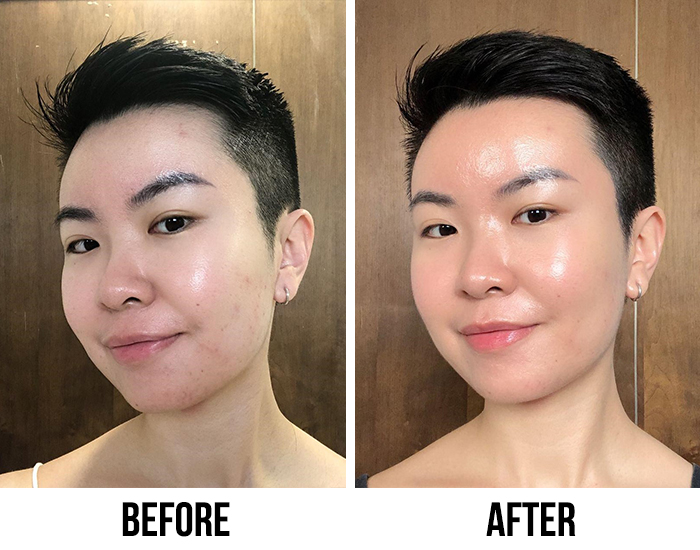 Clear Turn Face Masks Before After