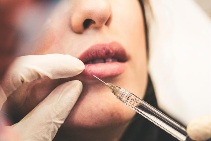 Amaris B December 2020 Face Tweakment Lip Injections Source Sam Moqadam Unsplash