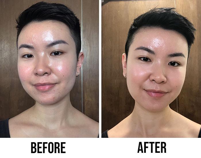 Lao Xie Zhen Collagen Beauty Essence Before After 2
