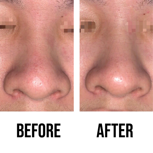 M2gic So Chio Before After Nose Area Blackhead Pores Customer Testimonial