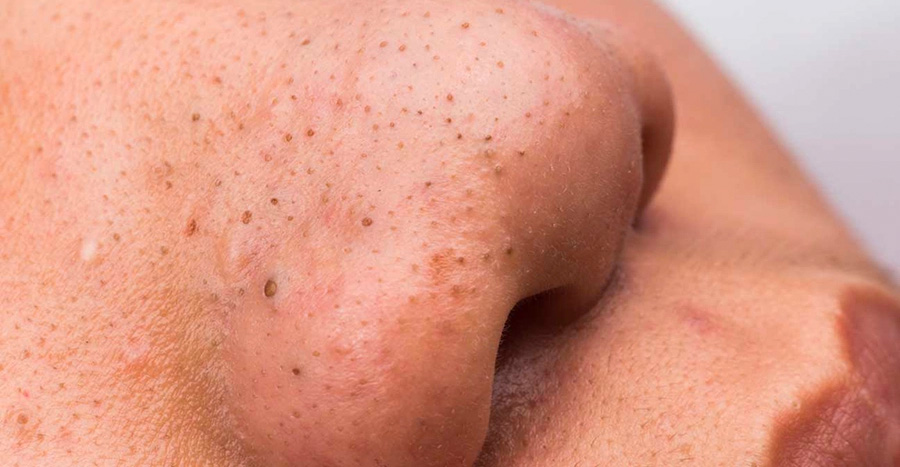 DIY blackhead extraction gone wrong and disfigured 17-year-old girl