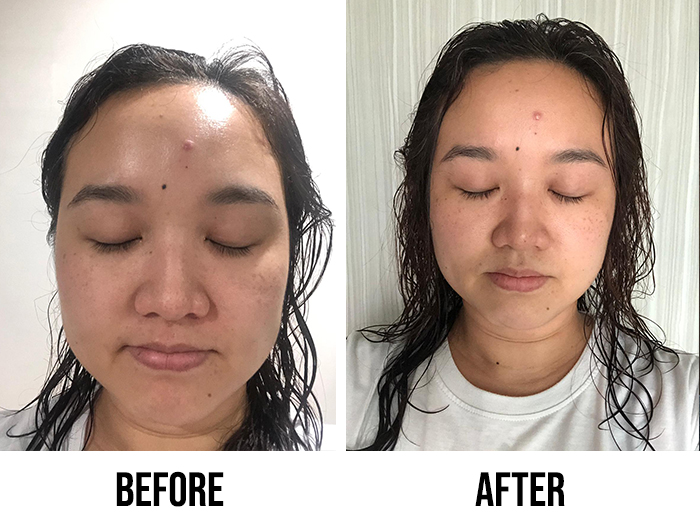 Innisfree Black Tea Youth Enhancing Ampoule Review Mei Jun Before After