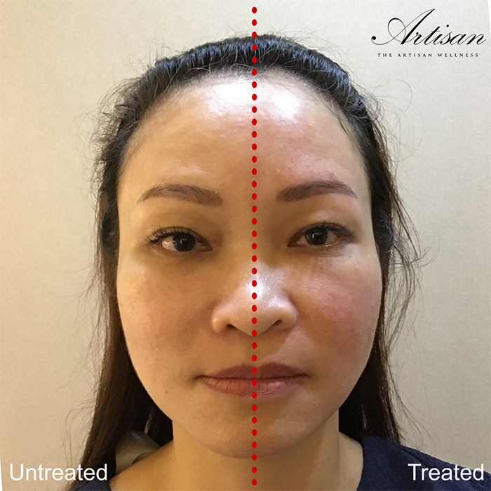 The Artisan Wellness Cynosure Tempsure Before After