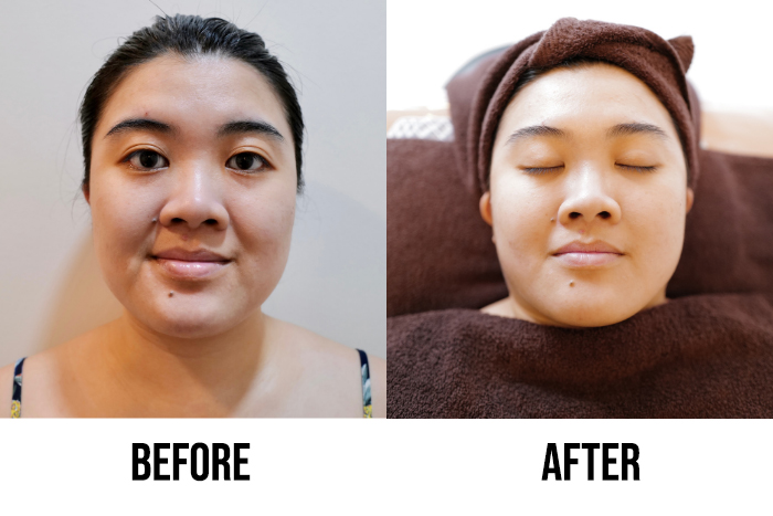 Best Brightening Facial Singapore Bioskin Facial Before After Reviewer