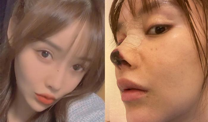 Chinese Actress Botched Nose Job Gao Liu