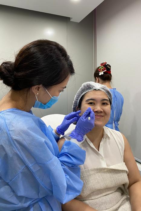 Profhilo Bap Marking Process Ids Clinic