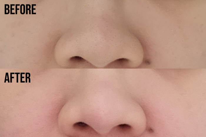 Mario Badescu Silver Powder Review Before After Blackheads On Nose