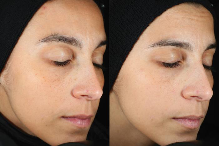 Skinceuticals Silymarin Cf Before After Comparison 2