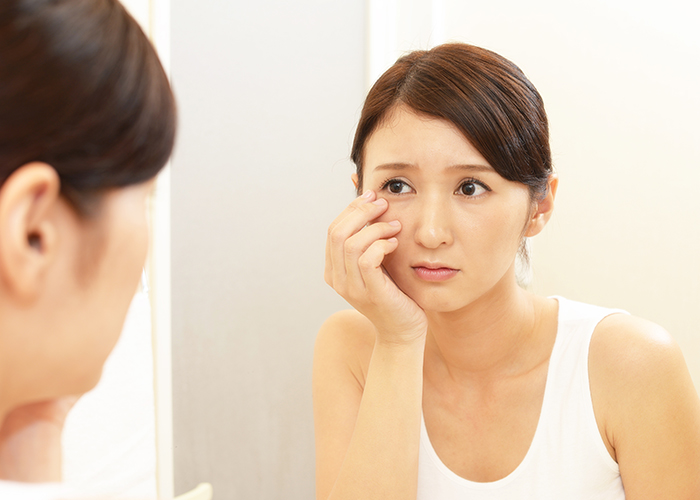 Woman concerned with Dark Circles