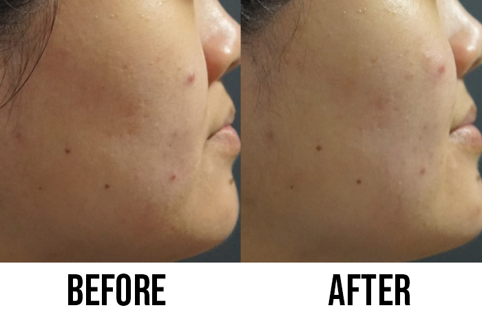 Extraction Facial Wow Wellness Oneness Wonders Before After Skin Texture