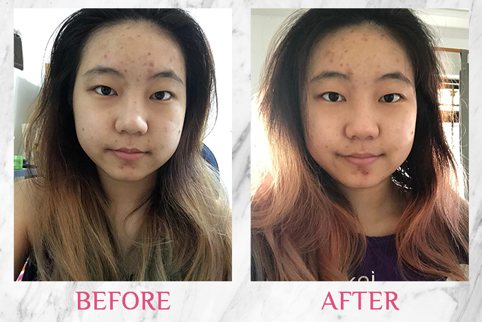 hada labo snow dew moisturizer before after reviewer albee