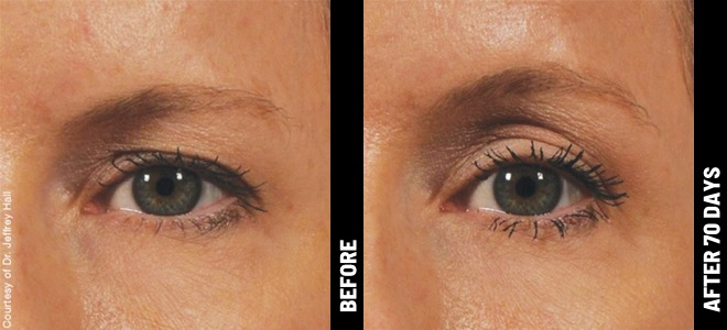 ultherapy before after brow