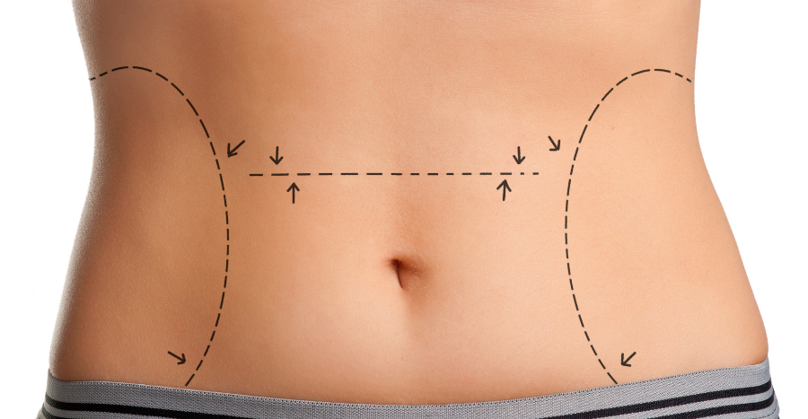 VASER liposuction in Singapore: the guide to getting a flat tummy without exercise