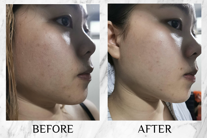 Melano CC Concentrated Brightening Essence sharon before after