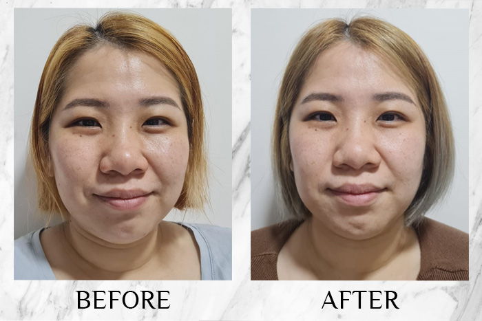 lavinia-youth-regenerating-serum-review-before-after-annette
