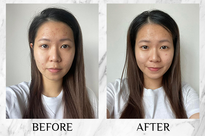 Vichy Mineral 89 Probiotic Fractions before after pimnara