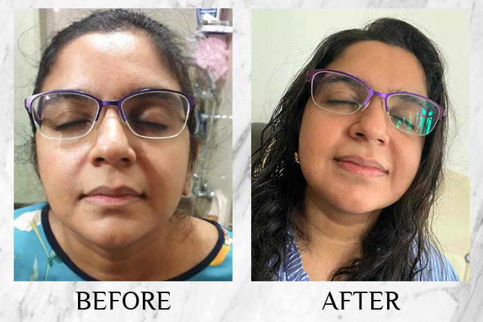 Vichy Mineral 89 Probiotic Fractions before after roshni