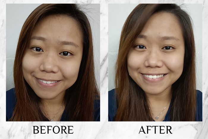 Vichy Mineral 89 Probiotic Fractions before after selina