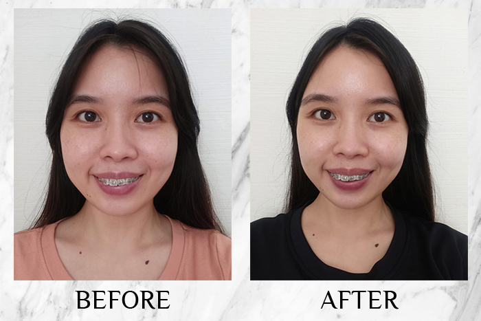 Vichy Mineral 89 Probiotic Fractions before after sin neen