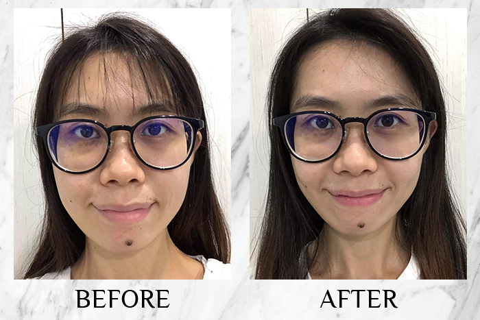 Vichy Mineral 89 Probiotic Fractions before after sin yee
