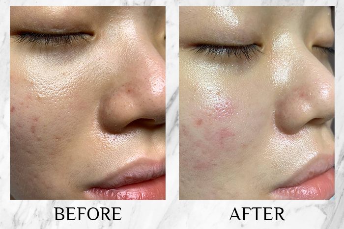 best extraction facial singapore probeau wellness before after