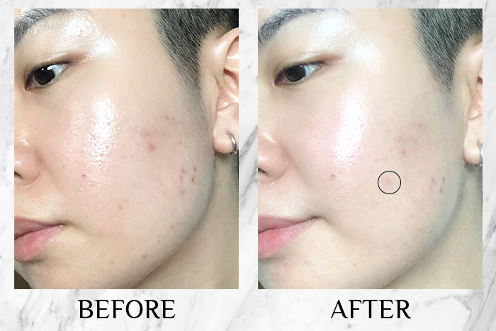 Clinique Even Better Clinical Radical Dark Spot Corrector + Interrupter review before after