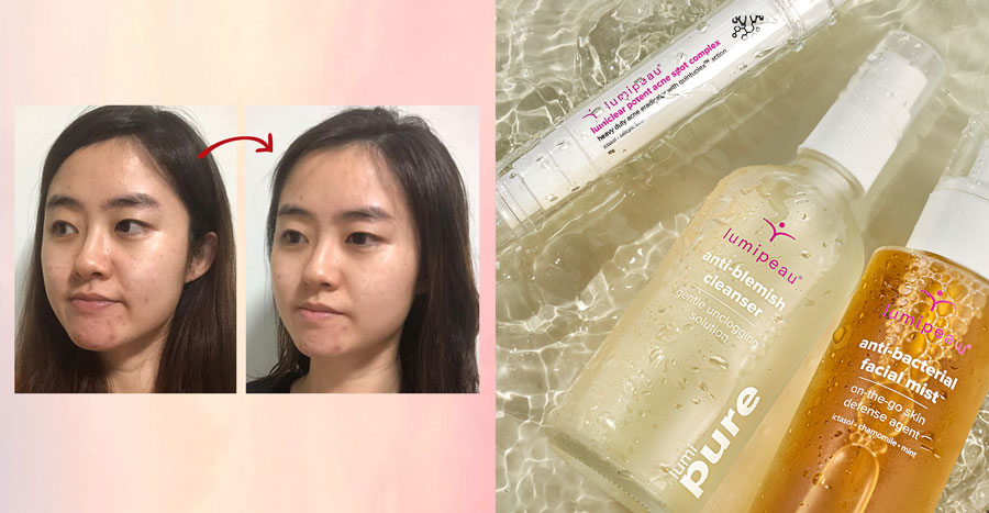Clearer skin in just 3 days? One reader puts this acne skincare range to the test