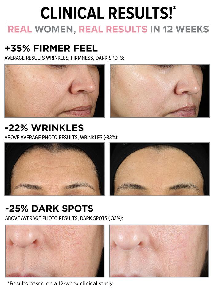 IT Cosmetics Hello Results Wrinkle-Reducing Daily Retinol Serum-in-Cream results 1