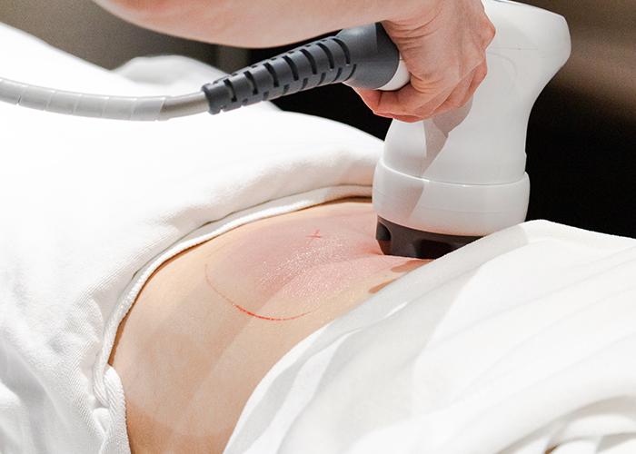 Illumia Therapeutics Cooltech icesculpt 360 Fat Freezing review massage